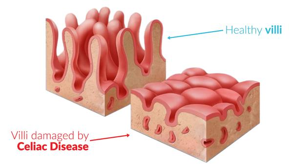 Villi increase the absorptive surface of intestines 30x! The lining of the intestines is only 1 cell thick.